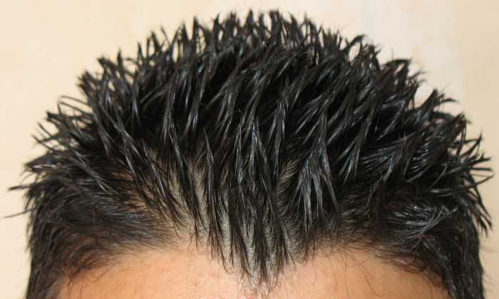 Dandruff Solution With Natural Shampoo